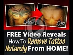 tattoo removal colchester can tattoos be removed completely