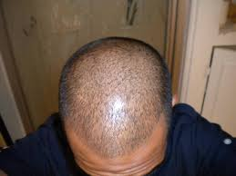 Azelaic Acid Hair Loss Gigz89 U0027s Story Hair Started Thinning At 17 This Is My Hair Now 5
