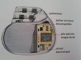 pacemaker chambre fonctionnement