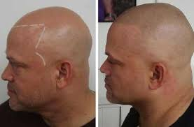 pics of scalp micropigmentation on people with long hair scalp micropigmentation is it worth it grooming adepts