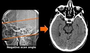 Ct Anatomy Of Brain Ppt The Radiology Assistant Dementia Role Of Mri