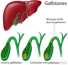what is a gallbladder diet with pictures