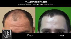 rogaine for women success stories oral minoxidil as a hair loss drug