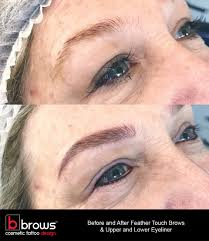 Eyebrow Tattoo Before And After Cosmetic Eyebrow Tattooing B Brows By Holly B Clinic Cosmetic