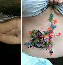 these incredible tattoos turn ugly scars into amazing works of art