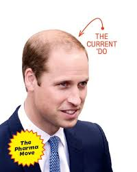 hair cuts for balding crown problem we just solved prince william s bald problem photos gq