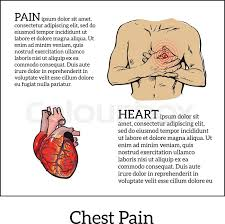 information about heart pain chest pain in men anatomical image