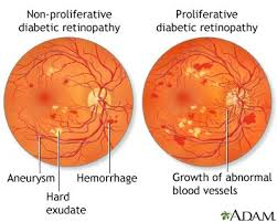 How Does Diabetes Cause Blindness Best 25 Diabetic Retinopathy Ideas On Pinterest Optometry