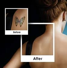 11 best picosure images on pinterest laser tattoo tattoo