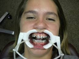 Braces Meme Girl - 21 struggles anyone who had braces as a kid will remember playbuzz