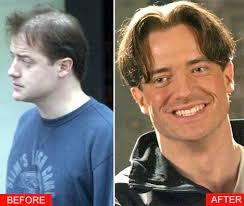 hair plugs for men five reasons men get a hair transplant dr robert jones