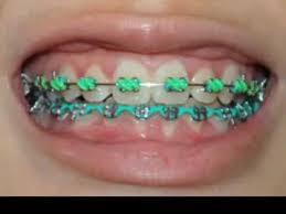 braces lapse