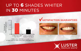 luster pro light teeth whitening system reviews luster premium whites review simple side of life