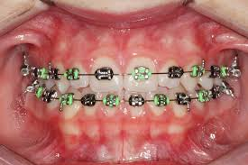 colorful braces fashion statement
