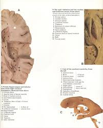pin by bengt sandberg on part 1 of 6 head neck and brain atlas
