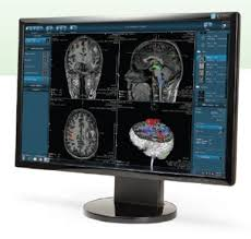 Memed Diagnostics - lovely memed diagnostics menges medizintechnik dynasuite neuro 3 0