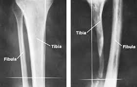 Normal Bone Anatomy And Physiology Cancellous Bone Anatomy Britannica Com