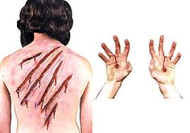 Jesus Costume Nail And Whip Scars Latex 6 Assorted Lengths Adhesive Not Included