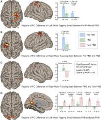 changes in brain resting state functional connectivity associated