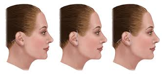 hairstyles that cover face lift scars faq categories rhytidectomy facelift surgery manhattan new