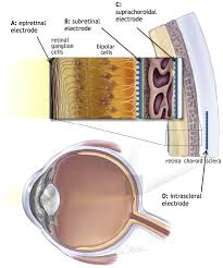 potential anatomical locations for retinal prosthesis implantation