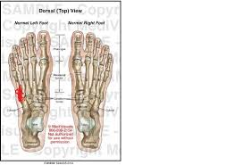 Top Foot Anatomy Knee Pain From Feet Injuries And Rehab Forums T Nation