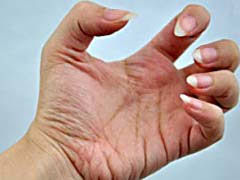 fingernail fungus cure how to get rid of infection in 30 days