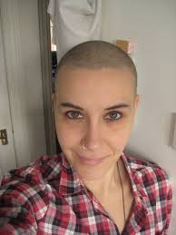 Hair Loss From Chemo Chemotherapy The Stories Of Rosa And Her Lump What Life Turns