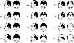 bandage hair shaped pattern baldness hudson s guide hair loss information and treatment options