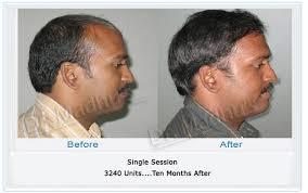 shane warne hair transplant advanced hair studio reviews india all the best hair in 2017