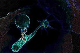 immunschwäche bislang unbekannte seltene immunschwäche erlaubt neuartige
