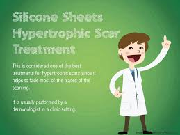 What Are The Best Sheets What Are Hypertrophic Scar Treatment Options Youtube