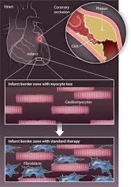 Tissue Renewal Regeneration And Repair Strategies For Cardiac Regeneration And Repair Science