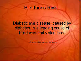 Preventing Blindness Diabetes And The Eyes Kenyon Anderson O D Blindness Risk