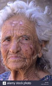 portrait of elderly woman with wrinkles and skin damage form too