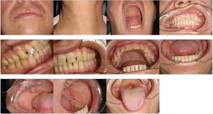 Cancer On Floor Of Mouth Pictures by Radiotherapy And Chemotherapy Treatments In Head And Neck Cancer