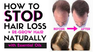 Essential Oils For Hair Loss How To Stop Hair Loss U0026 Regrow Hair Naturally Stop Thinning Hair
