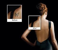 1 miami laser tattoo removal spa picosure laser