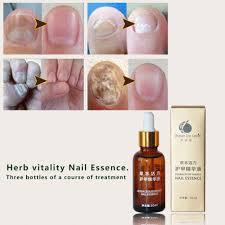popular nail repair buy cheap nail repair lots from china nail