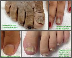 types of toenail fungus pictures awesome nail