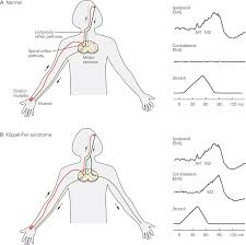 Pain Reflex Pathway Spinal Reflexes Principles Of Neural Science Fifth Editon