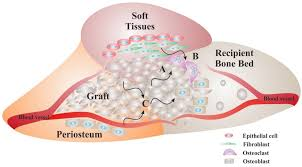 materials free full text bone replacement materials and