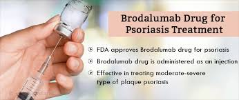 psoriasis treatment fda approves brodalumab drug for psoriasis treatment