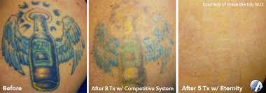 laser tattoo removal in nashville tennessee astanza laser llc