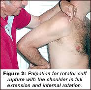 How To Palpate Subscapularis Palpation Test For Diagnosis Of Rotator Cuff Tears