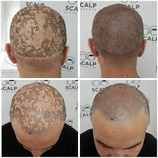 hairline tattoo nyc 94 best skalp post hairloss treatment photos