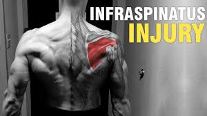 Shoulder Pain In Bench Press Shoulder Lat Tricep Rotator Cuff Pain Infraspinatus Youtube