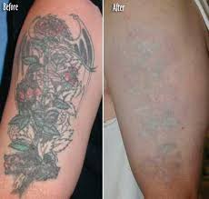 tattoo removal long island laser tattoo bergen county nj queens