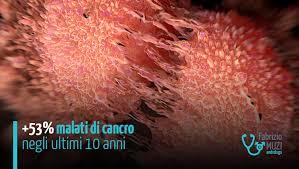 alimenti prostata tumore alla prostata numeri fattori di rischio come prevenirlo