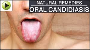 Roof Of Mouth Cancer Images by Oral Candidiasis Natural Ayurvedic Home Remedies Youtube